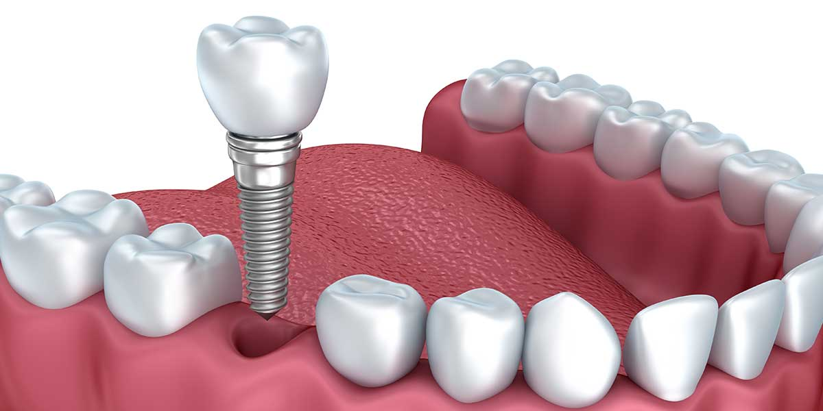 preguntas-implantes-dentales