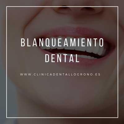 Tratamiento de blanqueamiento dental en clínica dental de Logroño
