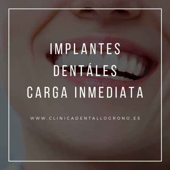 Implantes dentales de carga inmedianta en Logroño