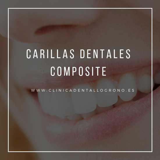Carillas dentales de composite en Logroño