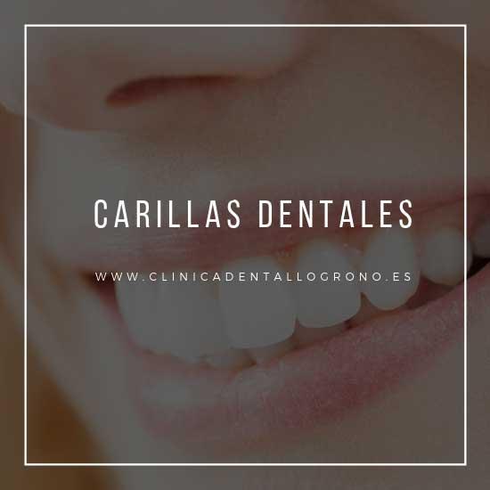Carillas dentales en Logroño