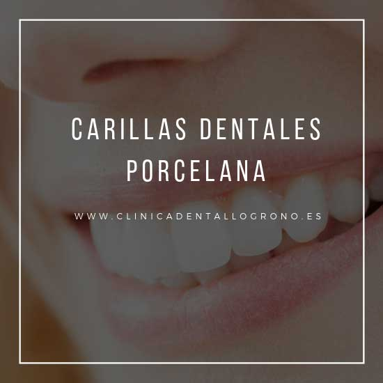Carillas dentales de porcelana en Logroño.